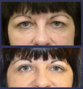 The images shows before and after photos of one of our upper eyelid lift or blepharoplasty patients
